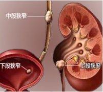 输尿管结石的诊治方法