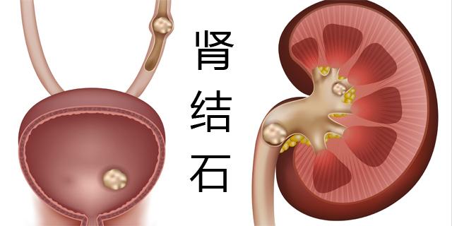 了解男性肾结石的前征兆,杜绝疾病来袭